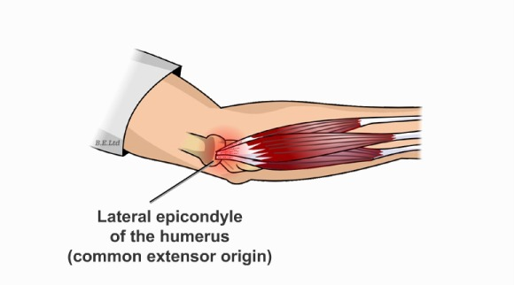 Elbow clipart tennis elbow. Tenniselbow jpg and golfers
