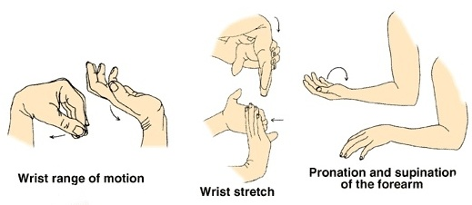 Elbow clipart tennis elbow. Top ways to treat