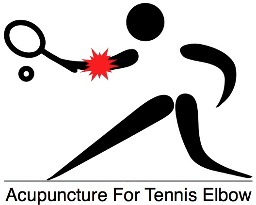 Elbow clipart tennis elbow. Acupuncture for brisbane woolloongabba