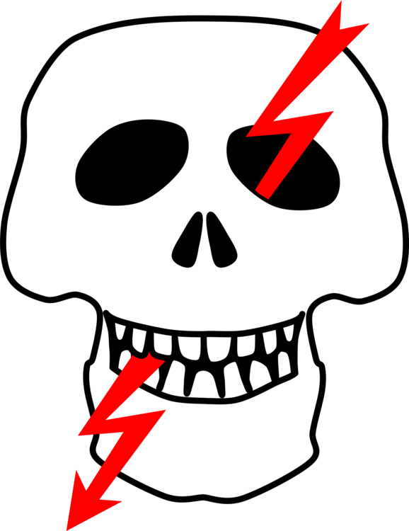 Electric clipart high tension. Voltage potential difference electricity