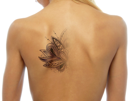 Evolution transparent tattoo. The of removal process
