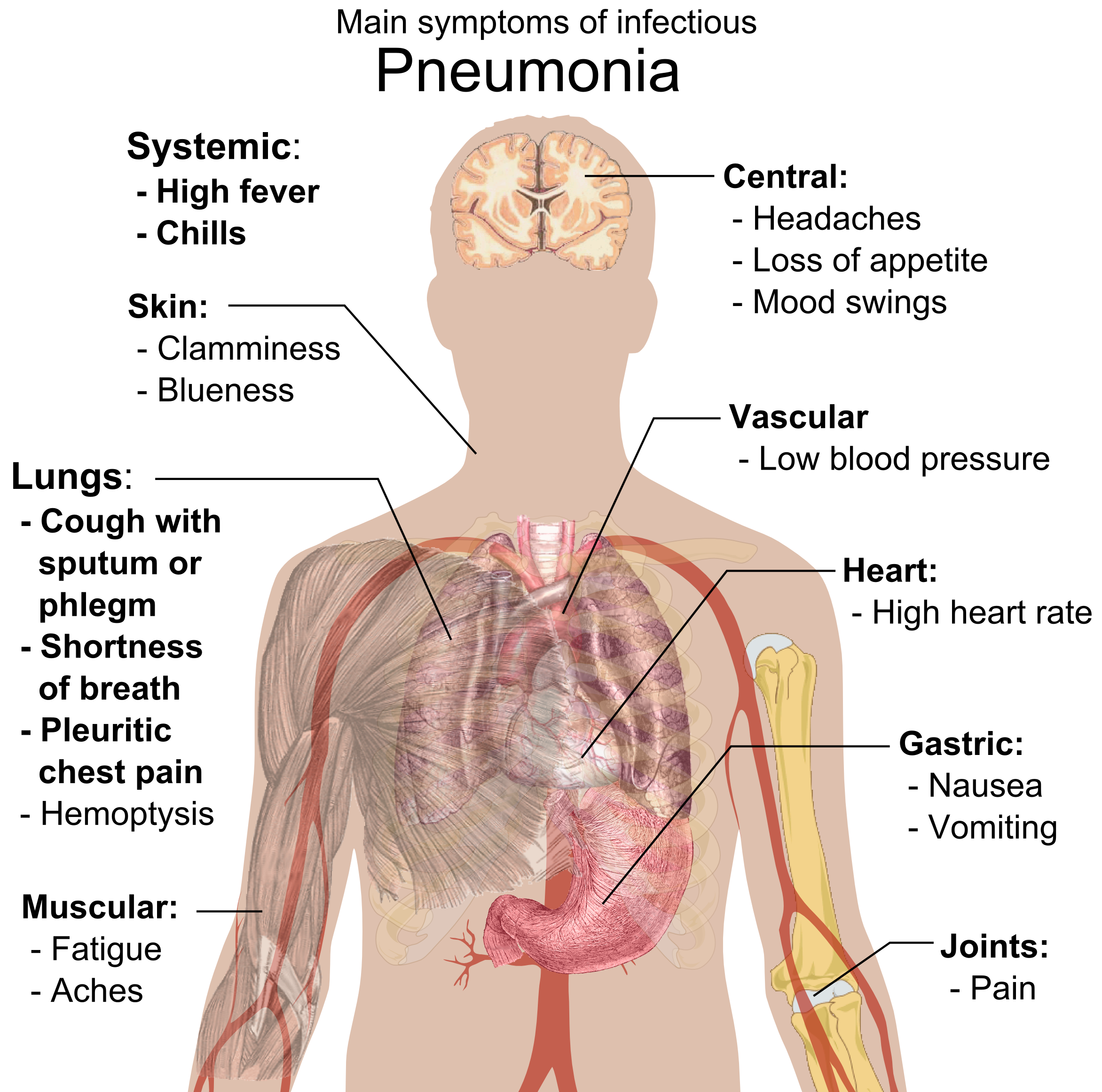Fever clipart pneumonia patient. Png transparent images filemain