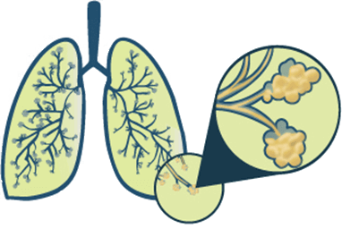 Fever clipart pneumonia patient. How bad is pneumococcal