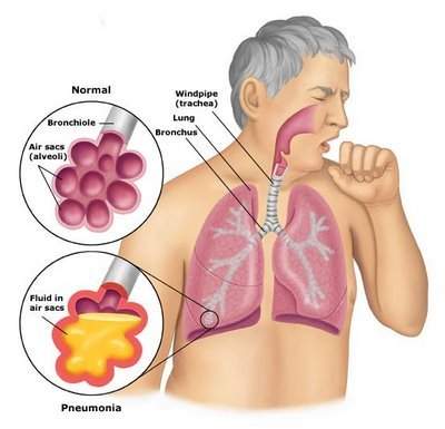Fever clipart pneumonia patient. In coimbatore id