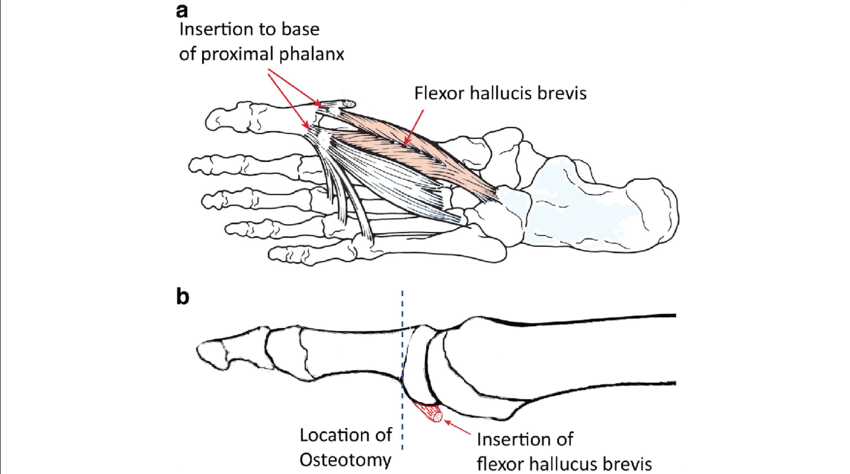 Toe drawing foot movement. Schematic outline of keller
