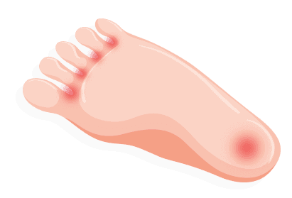 Transparent foot bottom. Identifying your pain treadmillreviews