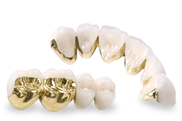 Gold tooth png. Dental lab occlusalgold pfm