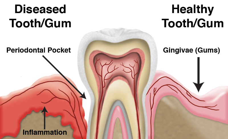 Gum drawing disease. Periodontitis and aweres an