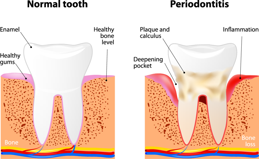 Gum drawing disease. Periodontal therapy valley dental