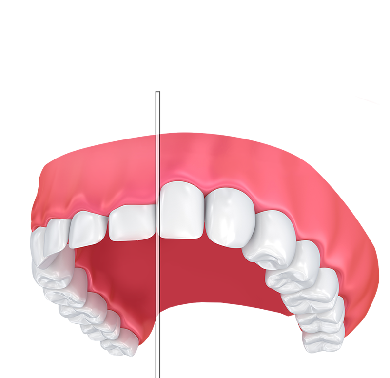 Gum drawing front tooth. Contouring