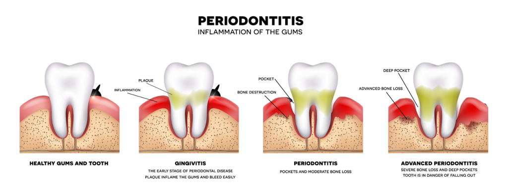 Gum drawing tooth loss. Periodontology periodontitis dental treatments