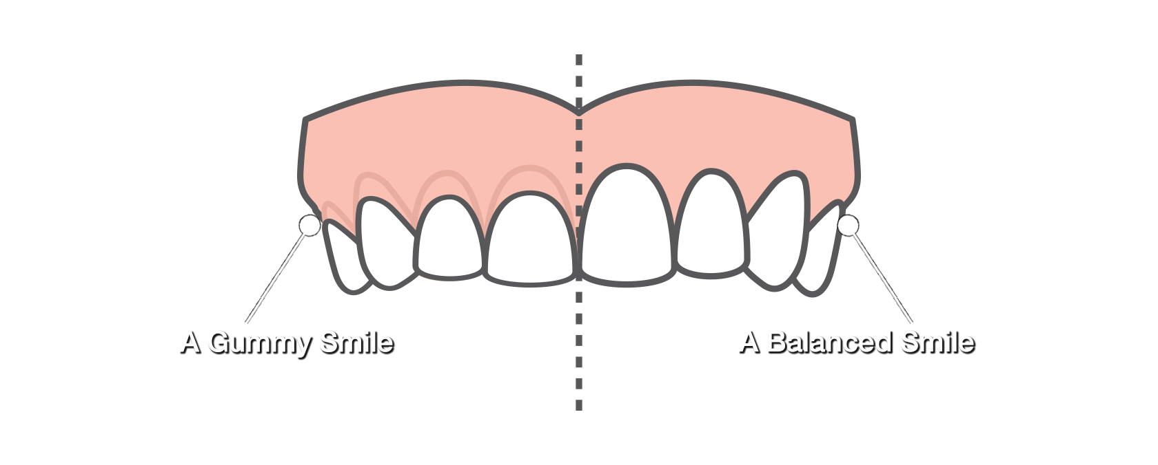 Gum drawing tooth loss. Gummy smile comparison