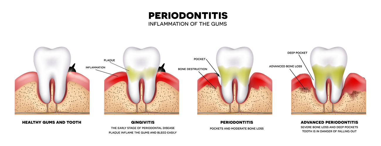 Gum drawing gingivitis. What are the different