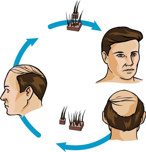 Hair clipart hair treatment. Best care tips