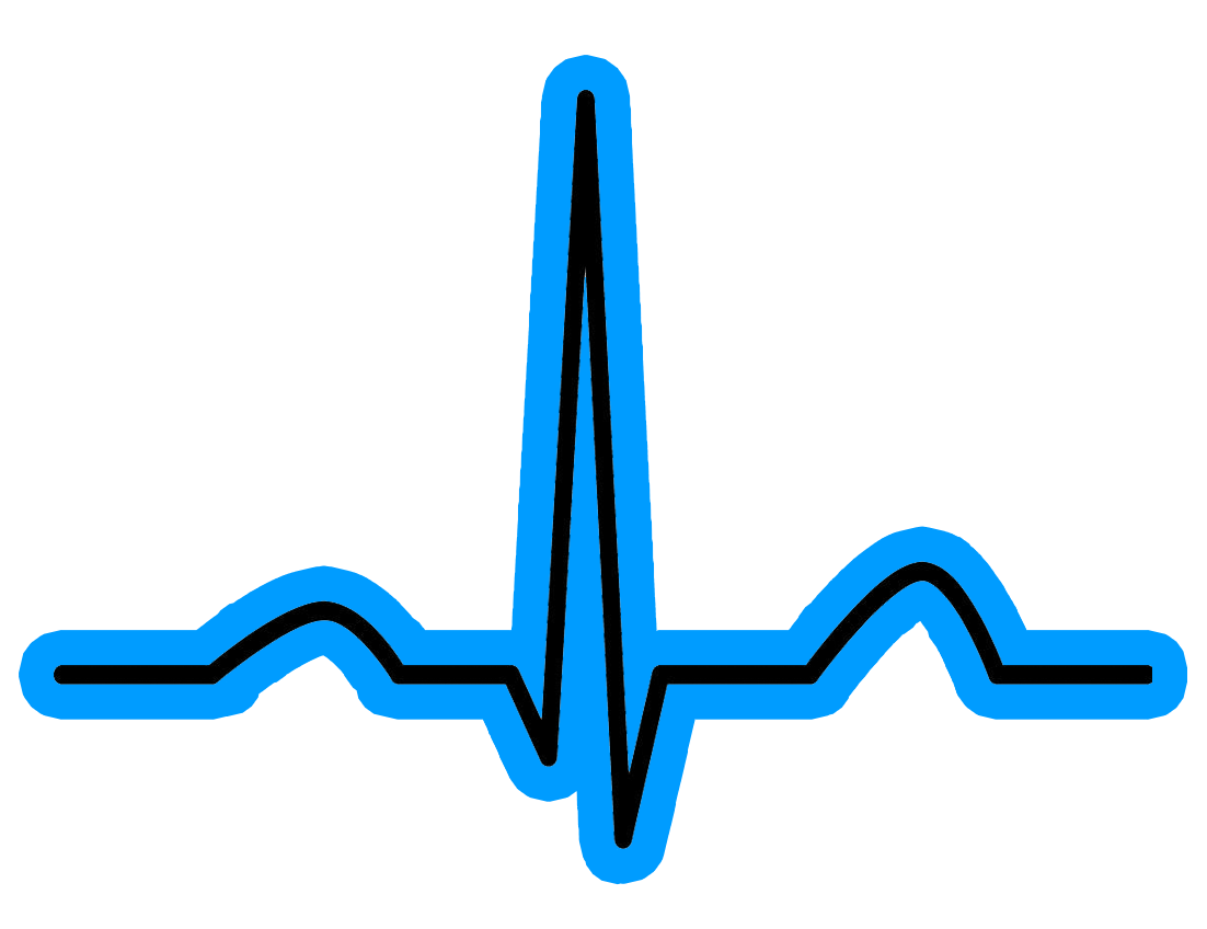 Heartbeat clipart music beat. The importance of changing