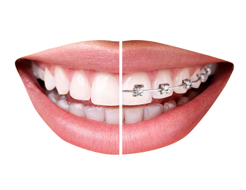 Teeth clip transparent. With braces png image