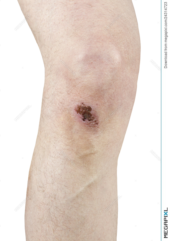 Injury clipart scraped knee. Scrape scab scar isolated