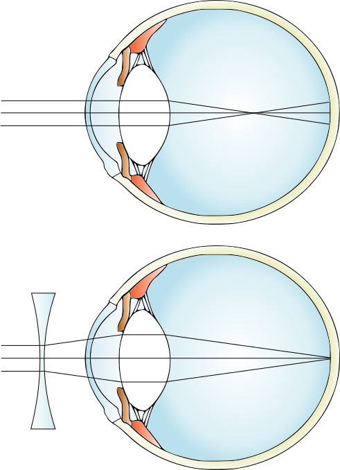 Lens drawing contact. How does a concave