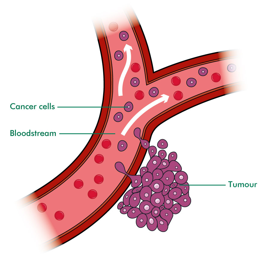 Liver clipart liver cancer. What is secondary in