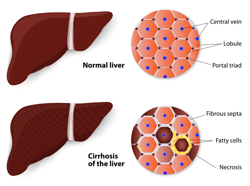 Liver clipart liver disease. Receptor may be key