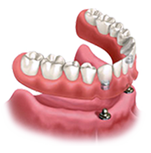 Teeth clip removable. Stabilizing existing dentures with