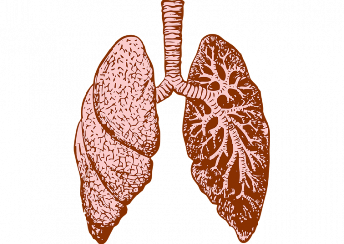 Lungs clipart pulmonary embolism. Resources cardiovisual what is