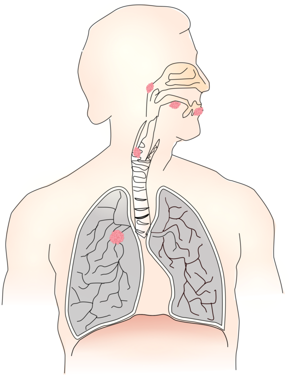 Disease drawing lung. Respiratory system respiration breathing
