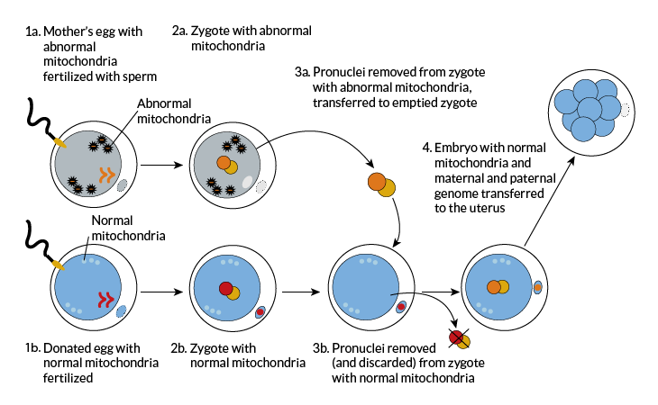 Mitochondria transparent abnormal. Update on three parent