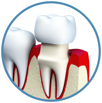 Mosquito clip tooth. Dental crowns bridges in