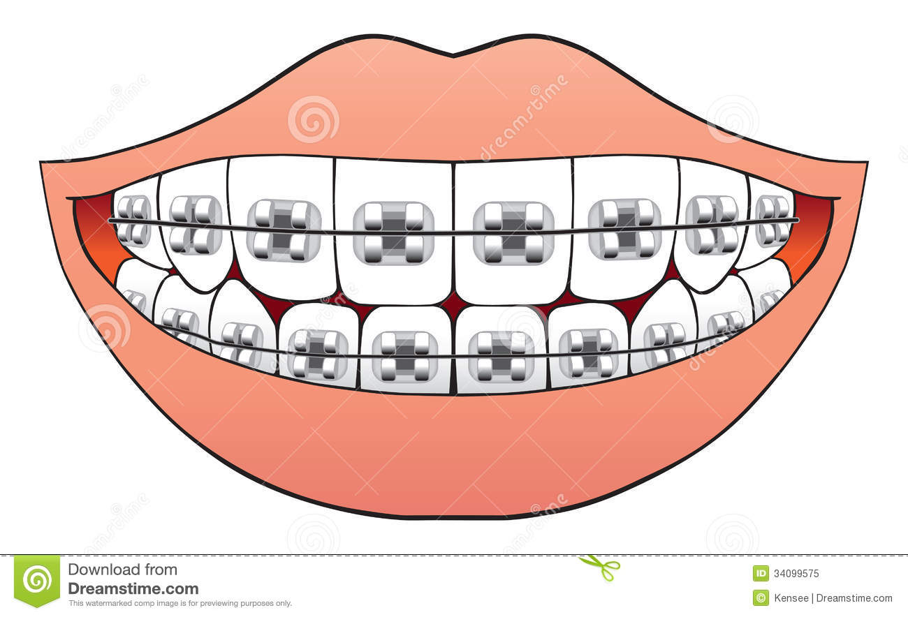 Mouth clipart cartooning. Braces cartoons image group