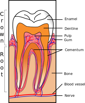 Transparent bones cracked. Tooth syndrome wikipedia sectionsvg