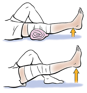 Movement clipart leg exercise. Advanced exercises after knee