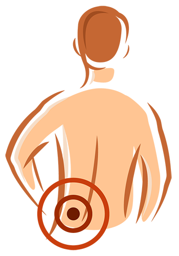 Pain clipart chronic pain. In the news how