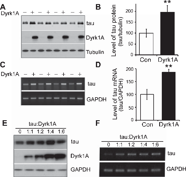Pci vector expression. Overexpression of dyrk a