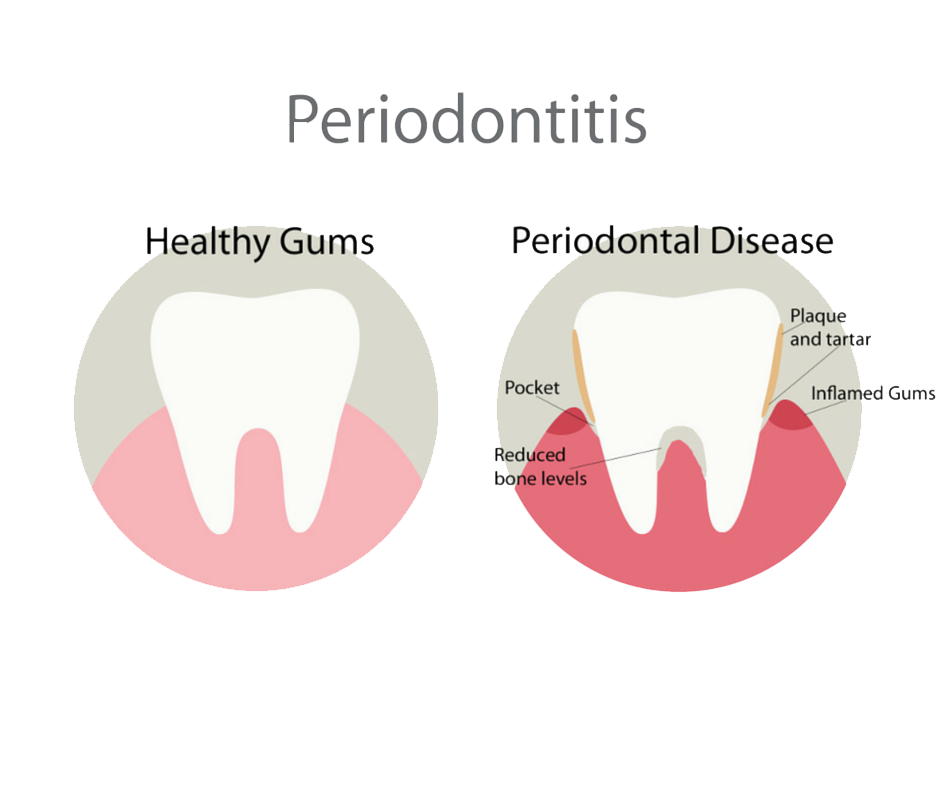 Physical health png. Ways your teeth