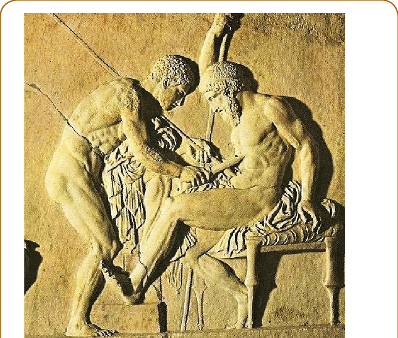 Relief drawing ancient war. Roman stone depicting surgical