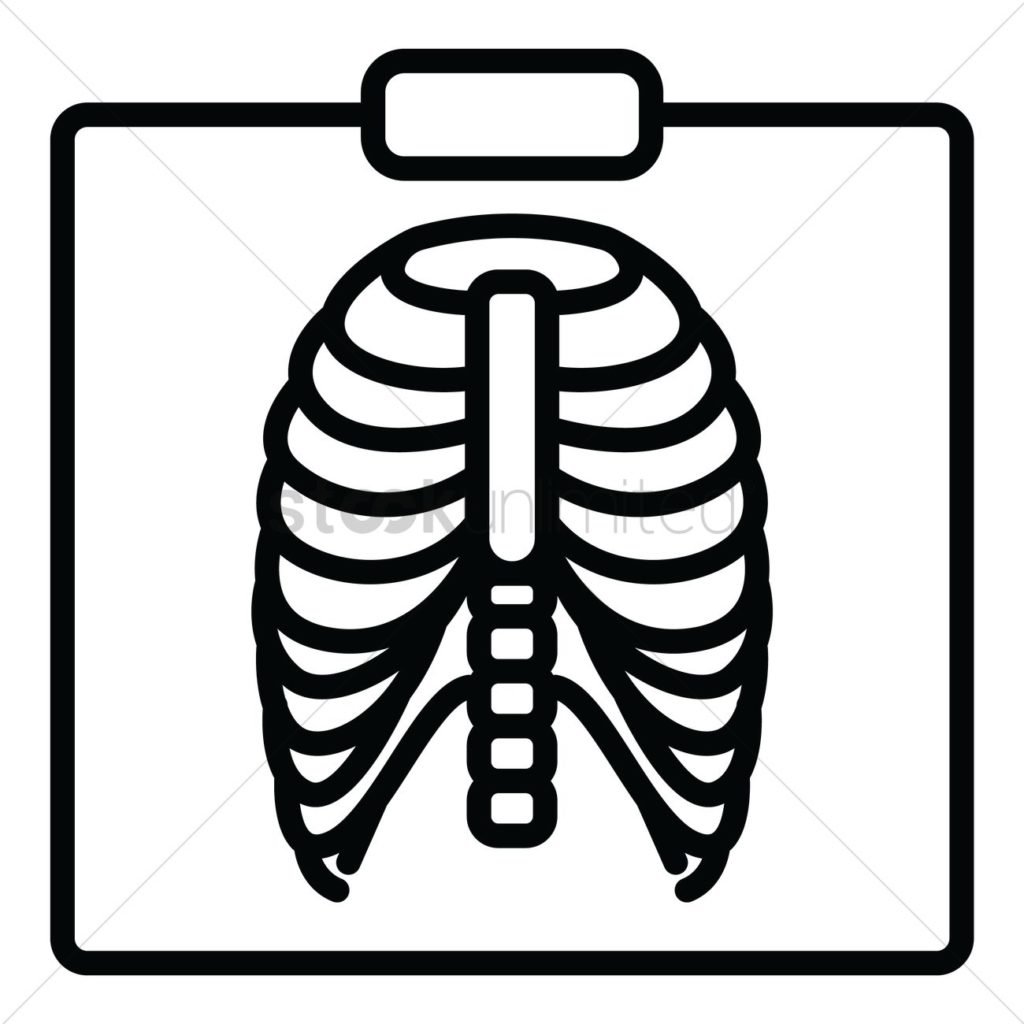 Xray clipart black and white. Chest x ray typegoodies