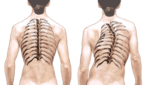 Scoliosis spine png. Idiopathic curvature of the