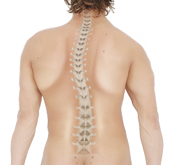 Scoliosis spine png. Adult degenerative raleigh nc