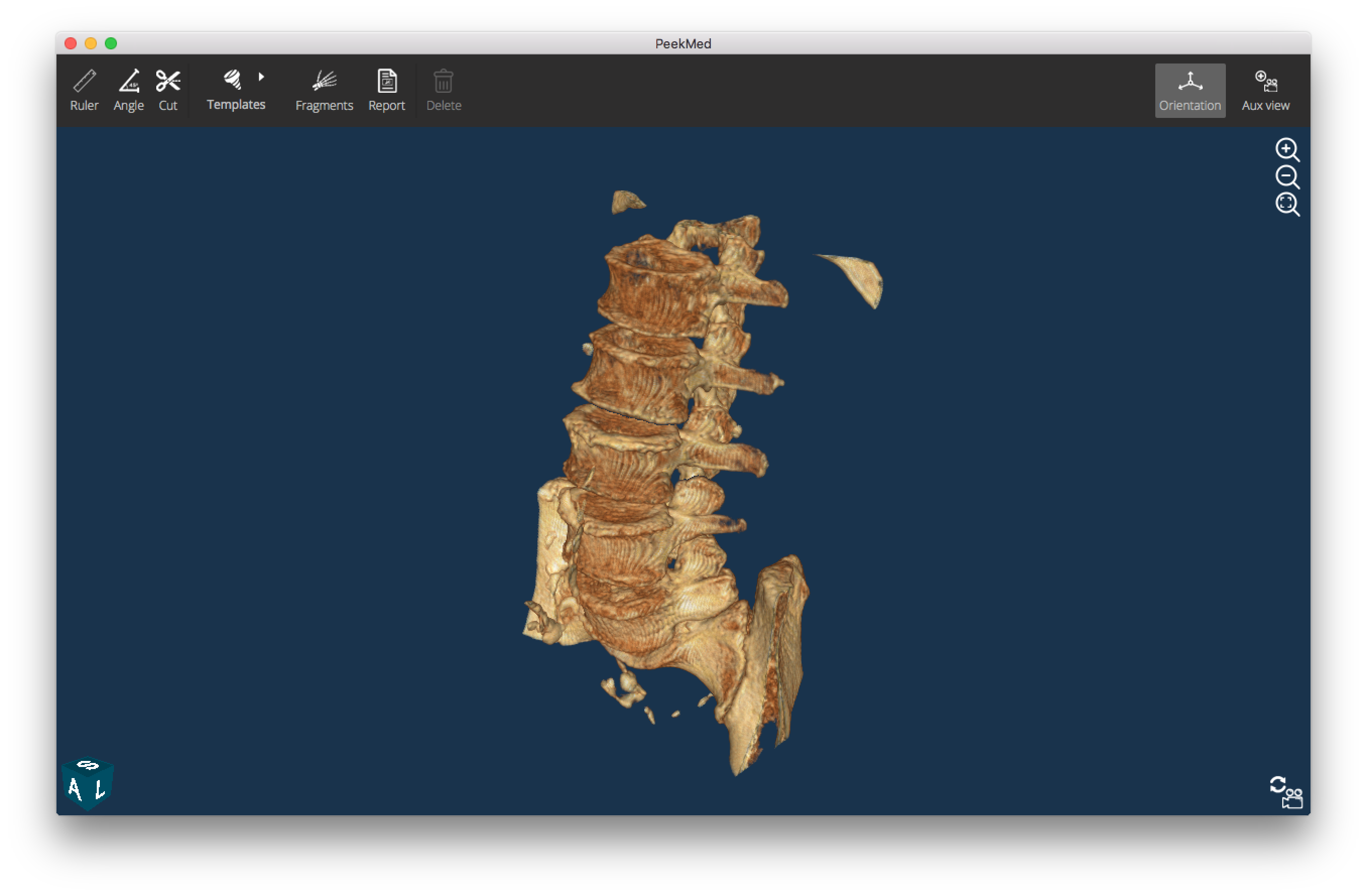 Scoliosis spine png. Imaging find out all