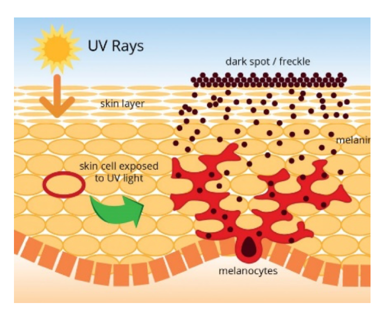 Skin clipart uv radiation. Technology soltego how rays