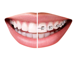 Braces clipart. Smile with png images