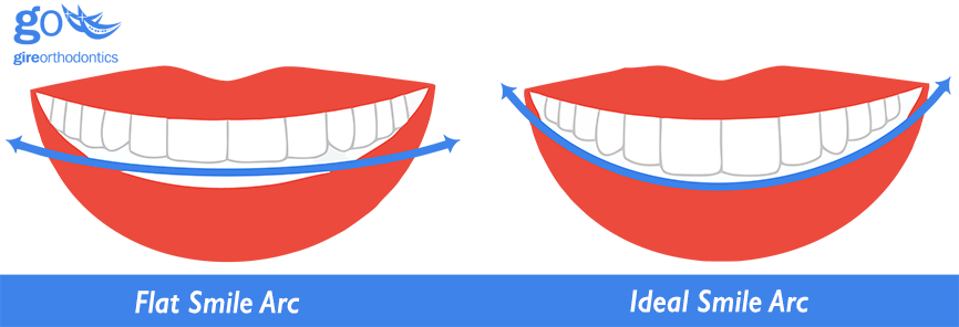 Teeth clip wire. Can higher bracket placement