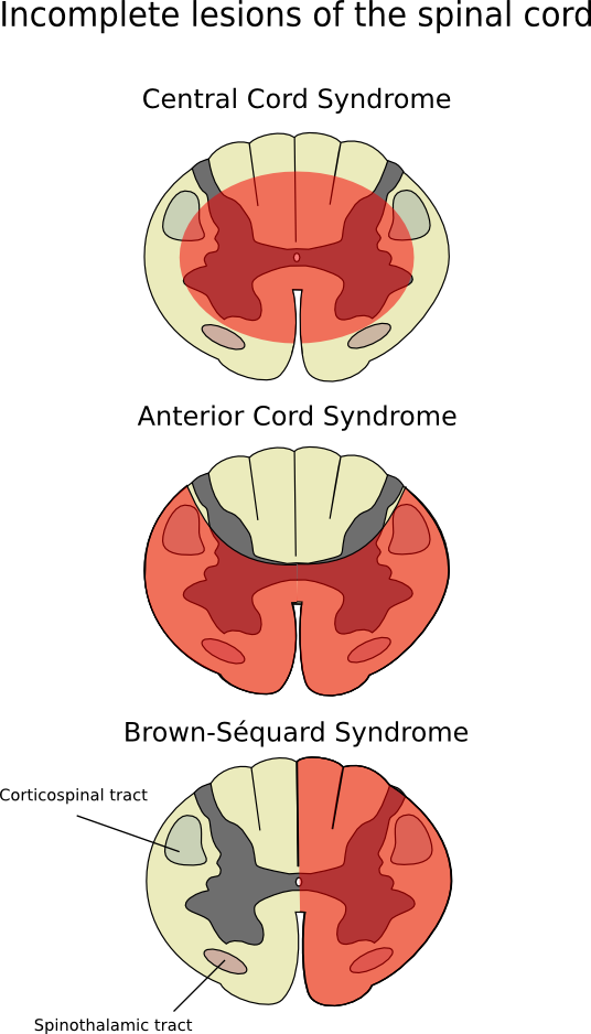 Spine clipart anterior. Spinal artery syndrome wikiwand