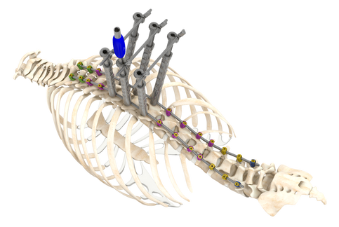 Png spine. Apex deformity system spinecraft
