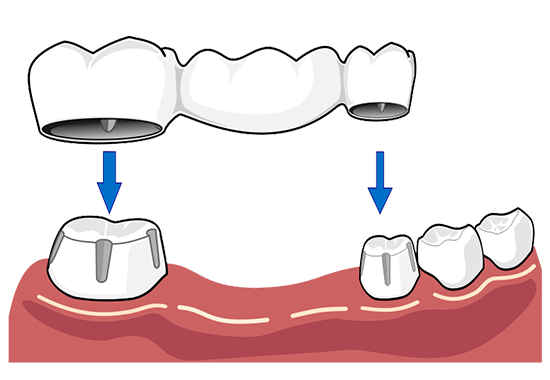 Strong clip tooth. Dental bridges after the