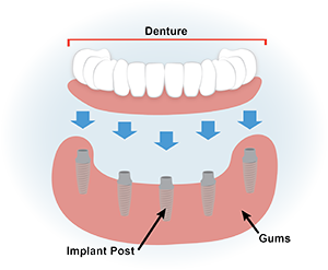 Strong clip tooth. Dental implants granbury center