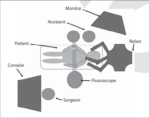 Surgery drawing operating room. Schematic of the setup
