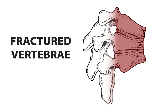 Surgery drawing spine. Tulsa back doctor specialist