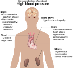 Svg graft heart. Cardiology wikipedia complications of